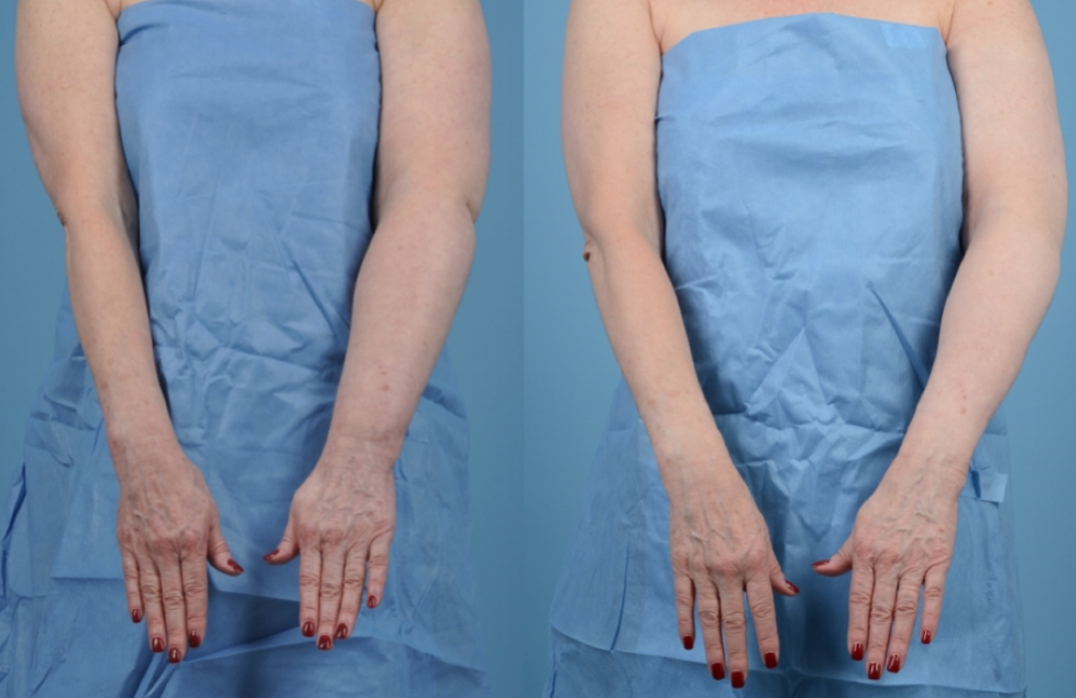 Breast cancer survivor with vascularized lymph node transplantation before its effect (left) and after 2 years (right).