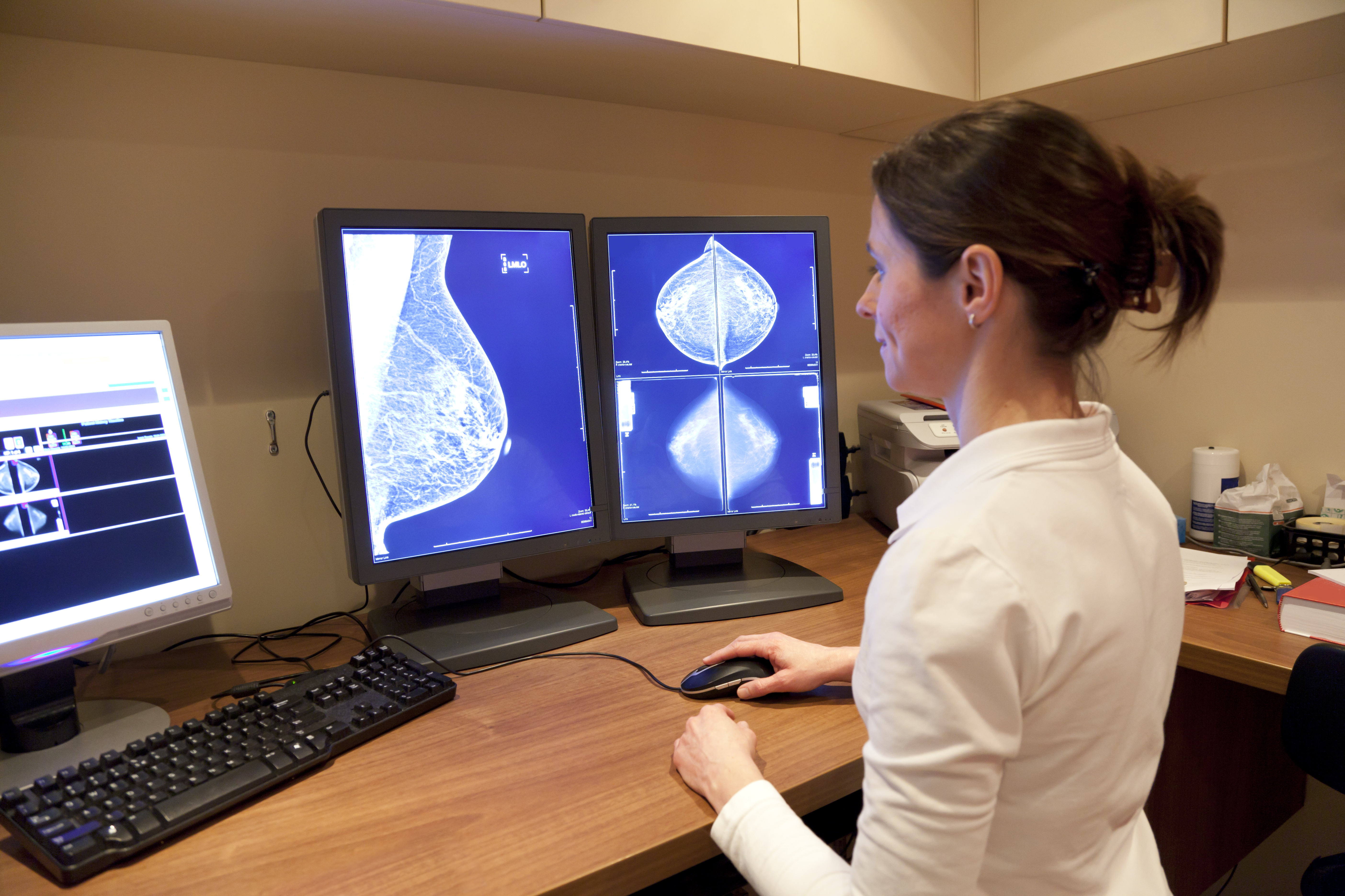 Radiology technician examens mammography test