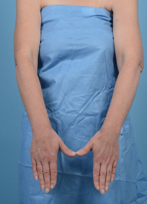 Breast cancer survivor with barely noticeable swelling in the left arm, complaining of heaviness.